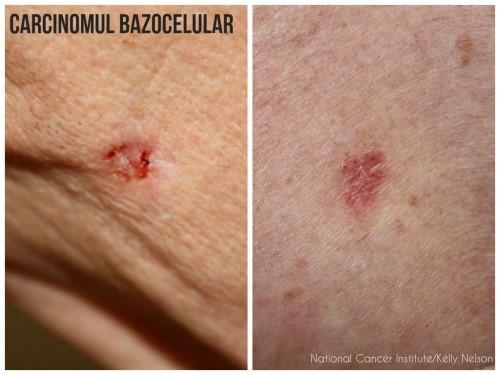 cancer de piele stadiul 3 contagio de papiloma
