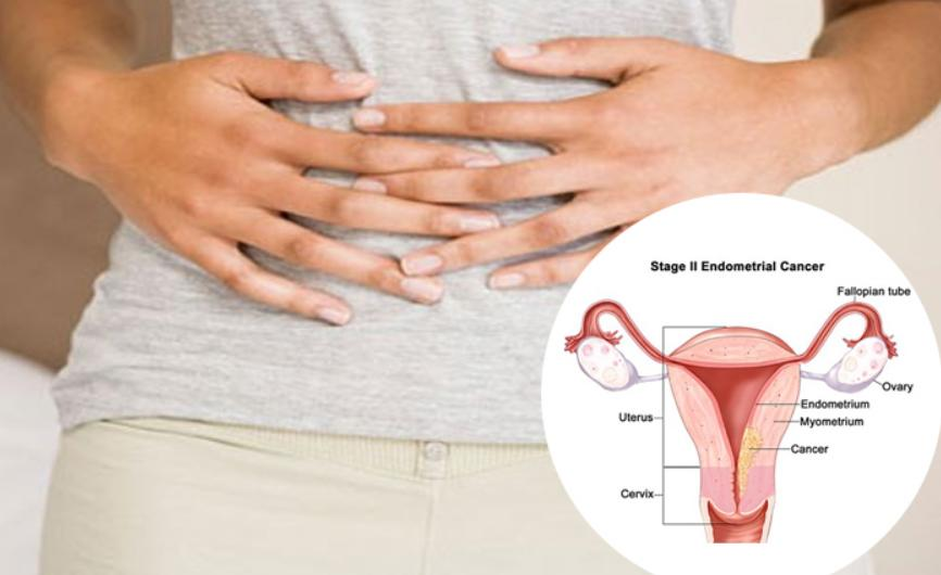 Cancerul de endometru (uterin)