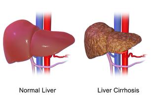 cancer hepatic si ciroza vindecare cancer ovar