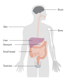 human papillomavirus norsk gastric cancer osmosis