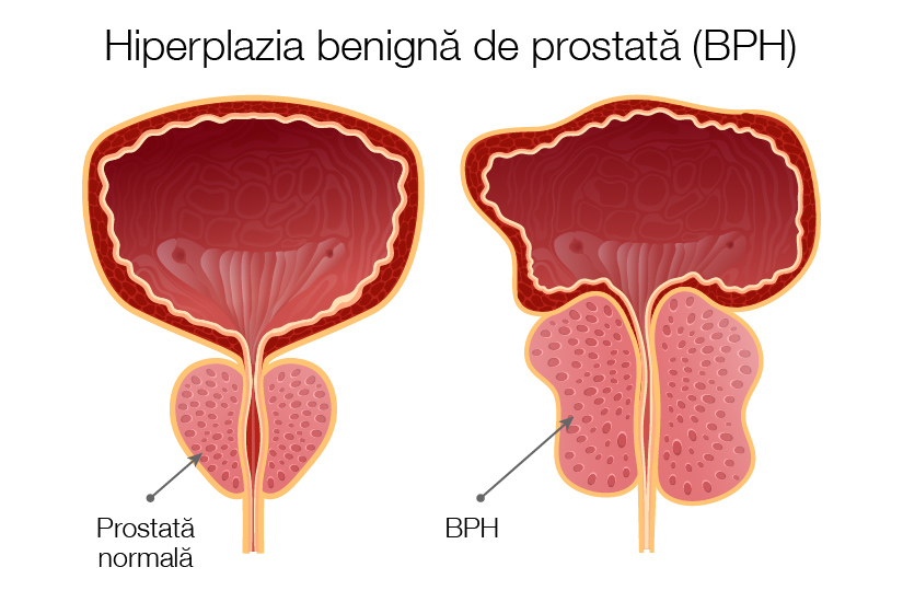 Cancer la prostata: cauze, simptome, diagnostic, tratament