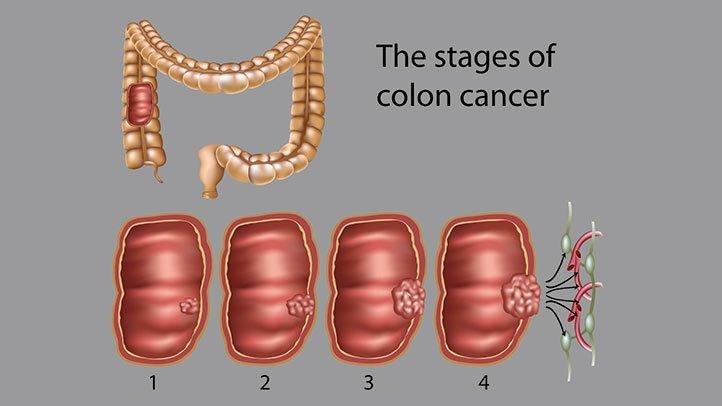 cancer vesicula biliar fisiopatologia