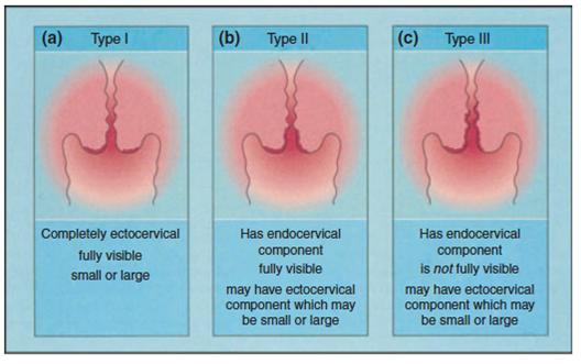 papiloma nasal escamoso