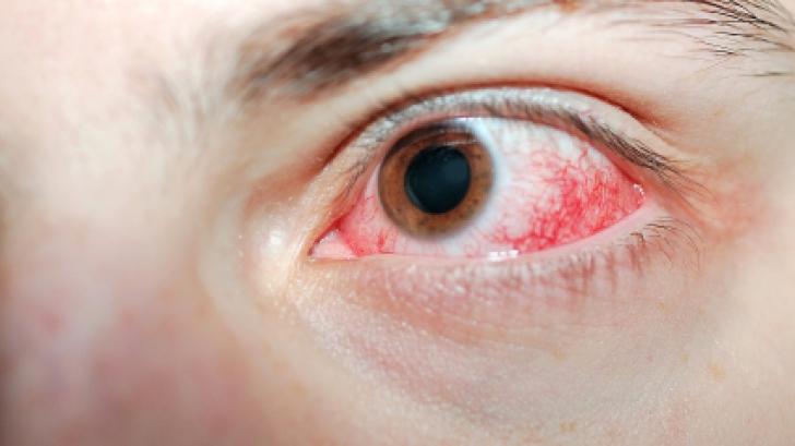 papilloma virus trasmesso dalluomo