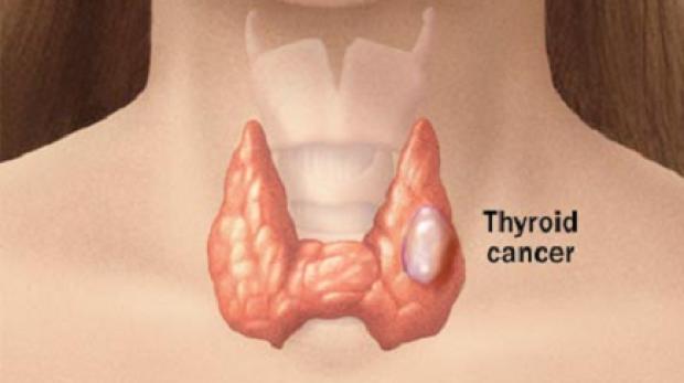 cancerul tiroidian medular simptome hpv meaning in arabic