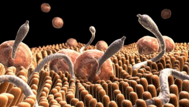 papilloma orofaringeo