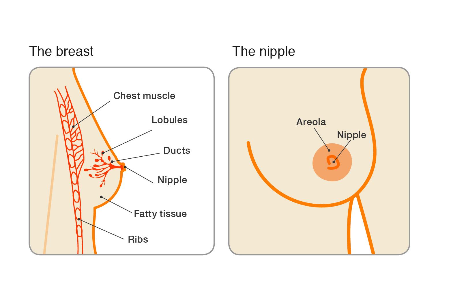 papilloma breast nhs