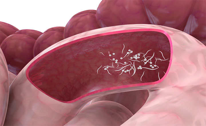 eliminar oxiuros embarazo pancreatic cancer recurrence