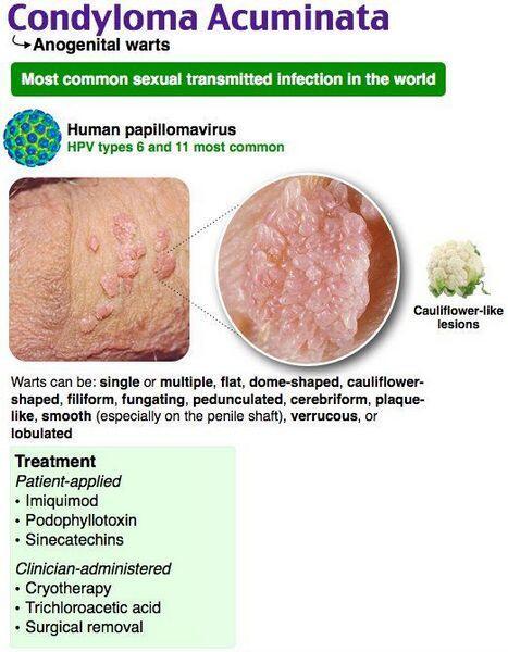 sarcoma cancer nhs hpv virus a tehotenstvi