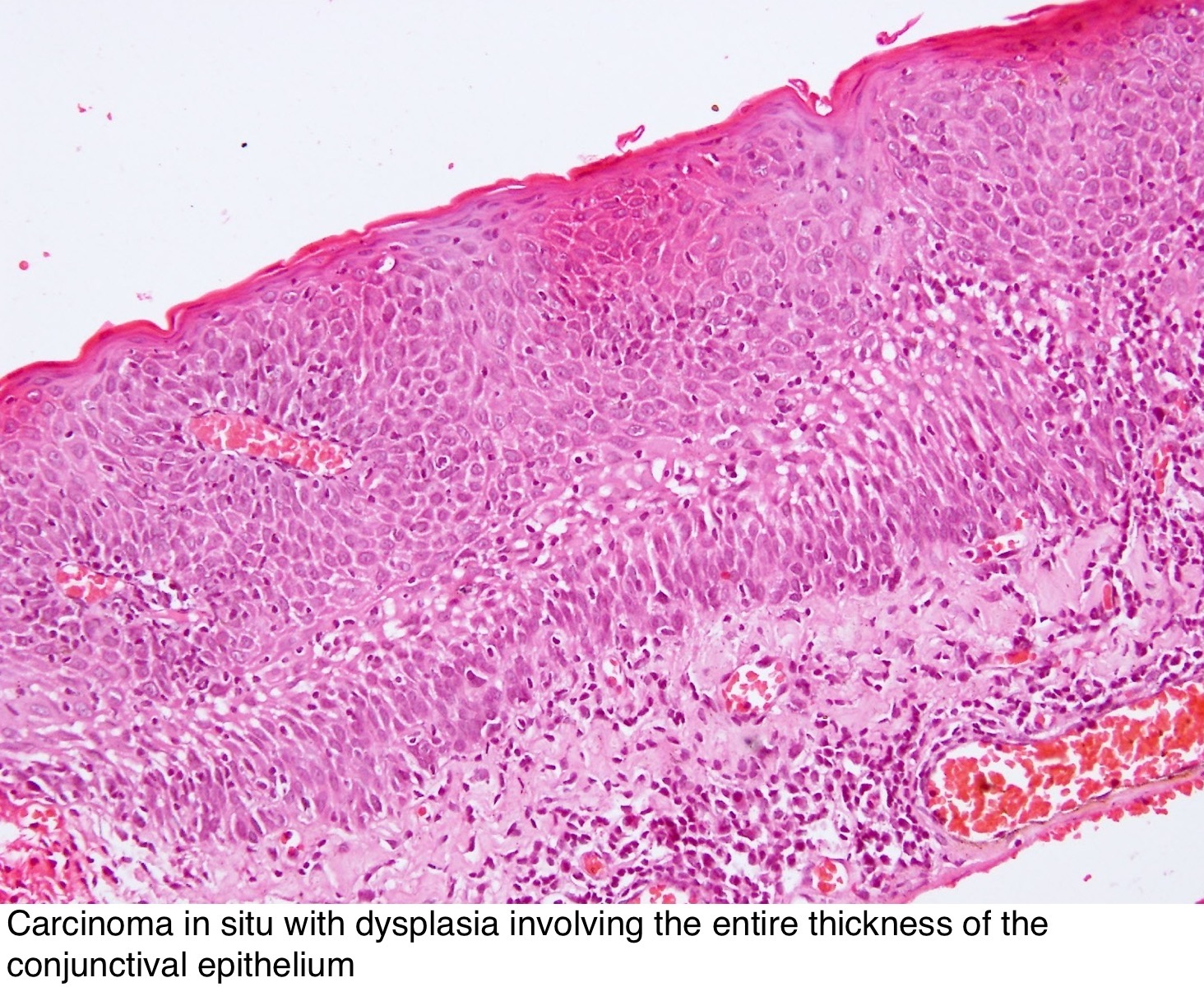 conjunctival papilloma pathology outline hpv and colon polyps