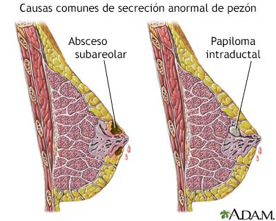 papiloma senos mujeres como se contagia el parasito oxiuros
