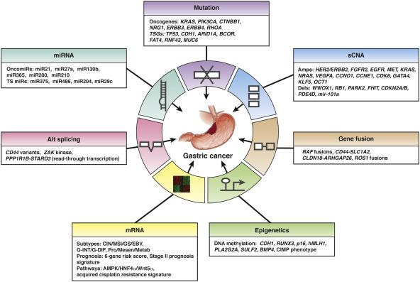 gastric cancer molecular classification papilloma squamoso lingua cause
