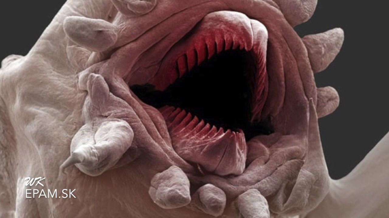 paraziti v ludskom tele