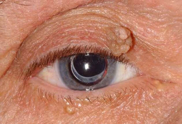 picture of papilloma on eyelid hpv skin infections