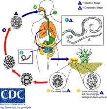 define helminth infection