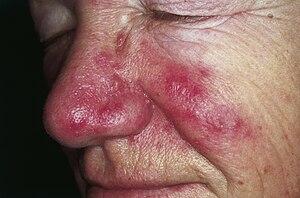dermatite ou rosacea