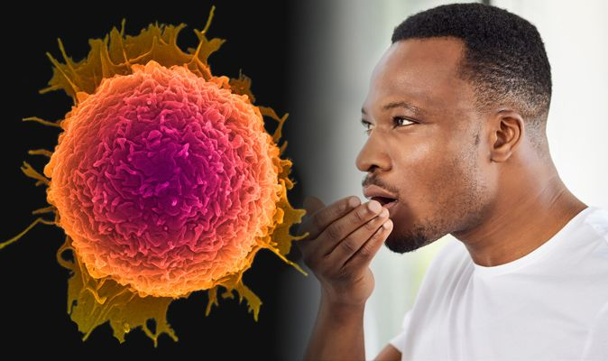 does papilloma cause bad breath cancer man aggressive
