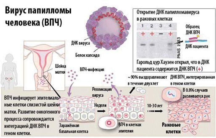 papilloma on throat