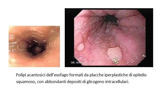 papilloma squamoso esofageo hpv frau was tun