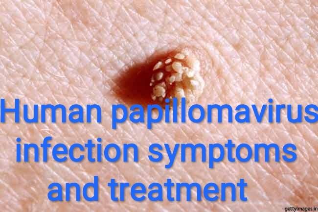 human papillomavirus infection look like