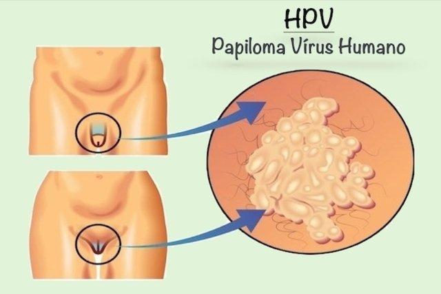 virus del papiloma humano sintomi pastile pentru limbrici la om