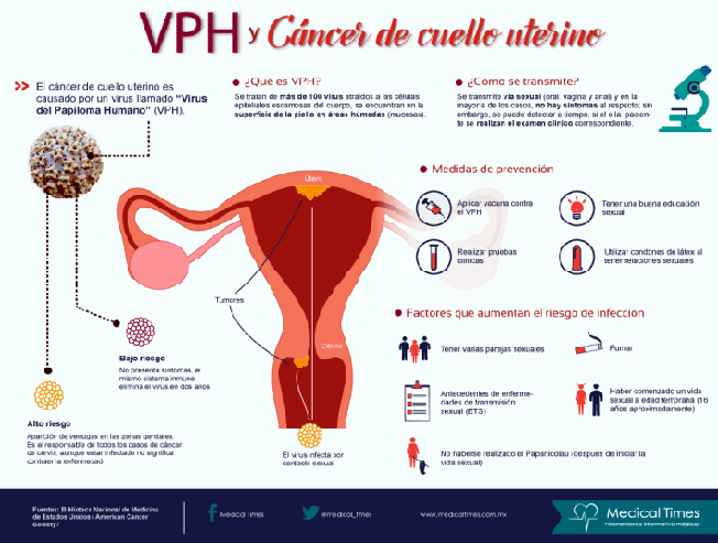 Cancerul ovarian – simptome, cauze, tratament