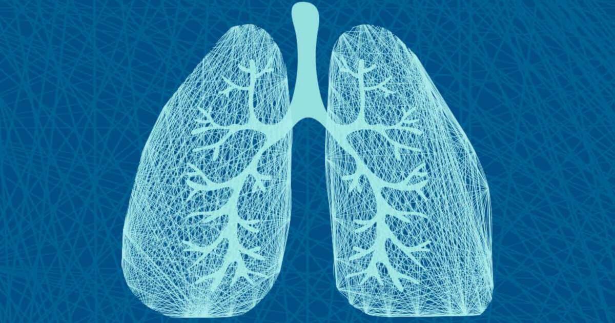 cancer pulmonar non-microcelular