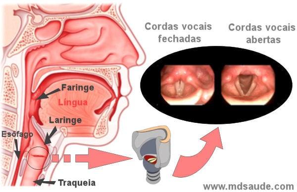 cancer laringe faringe sintomas