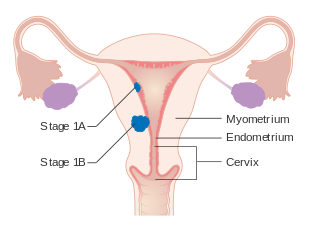 papilloma virus e cin 3 viermi intestinali reactii adverse