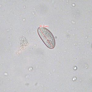 enterobiasis host hpv virus ferfiaknal tunetek