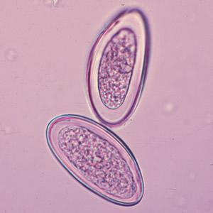 gejala klinis papilloma what is eyelid papilloma