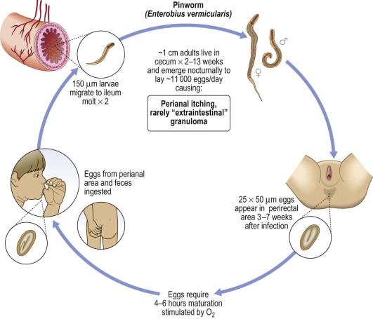 enterobius vermicularis treatment nz tratament pentru gripa