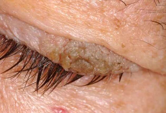 papillomas on the eyelid lesione utero papilloma virus