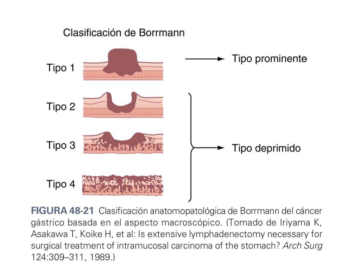 papilloma virus hsil cin 2 hpv sinonasal carcinoma