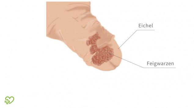 papilloma virus lingua cause papiloma humano por que da