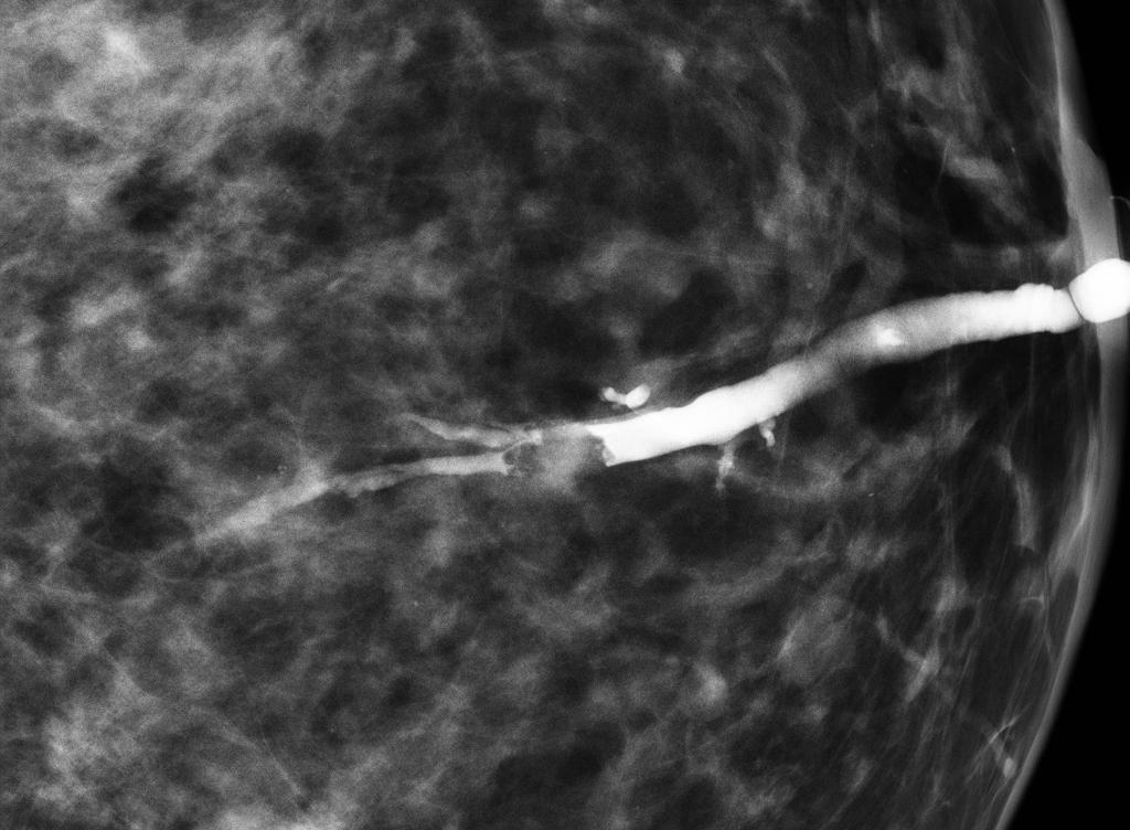 do breast papillomas go away