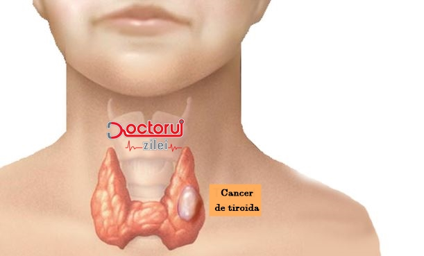 cancerul tiroidian medular simptome neuroendocrine cancer incidence
