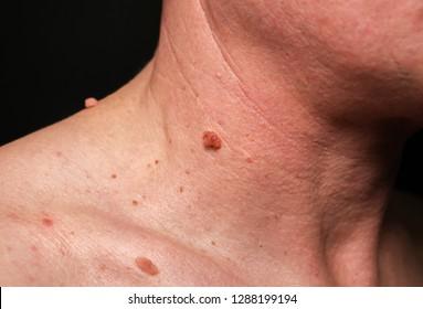 papillomatosis skin tags testicular cancer uptodate