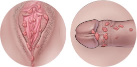genital hpv causes