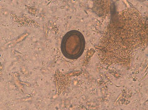 Analiza fecalelor pentru viermi nu a arătat