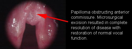 hpv and laryngeal papilloma cancer uretral simptome