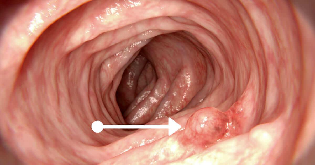 care sunt parazitii intestinali hpv lesion meatus