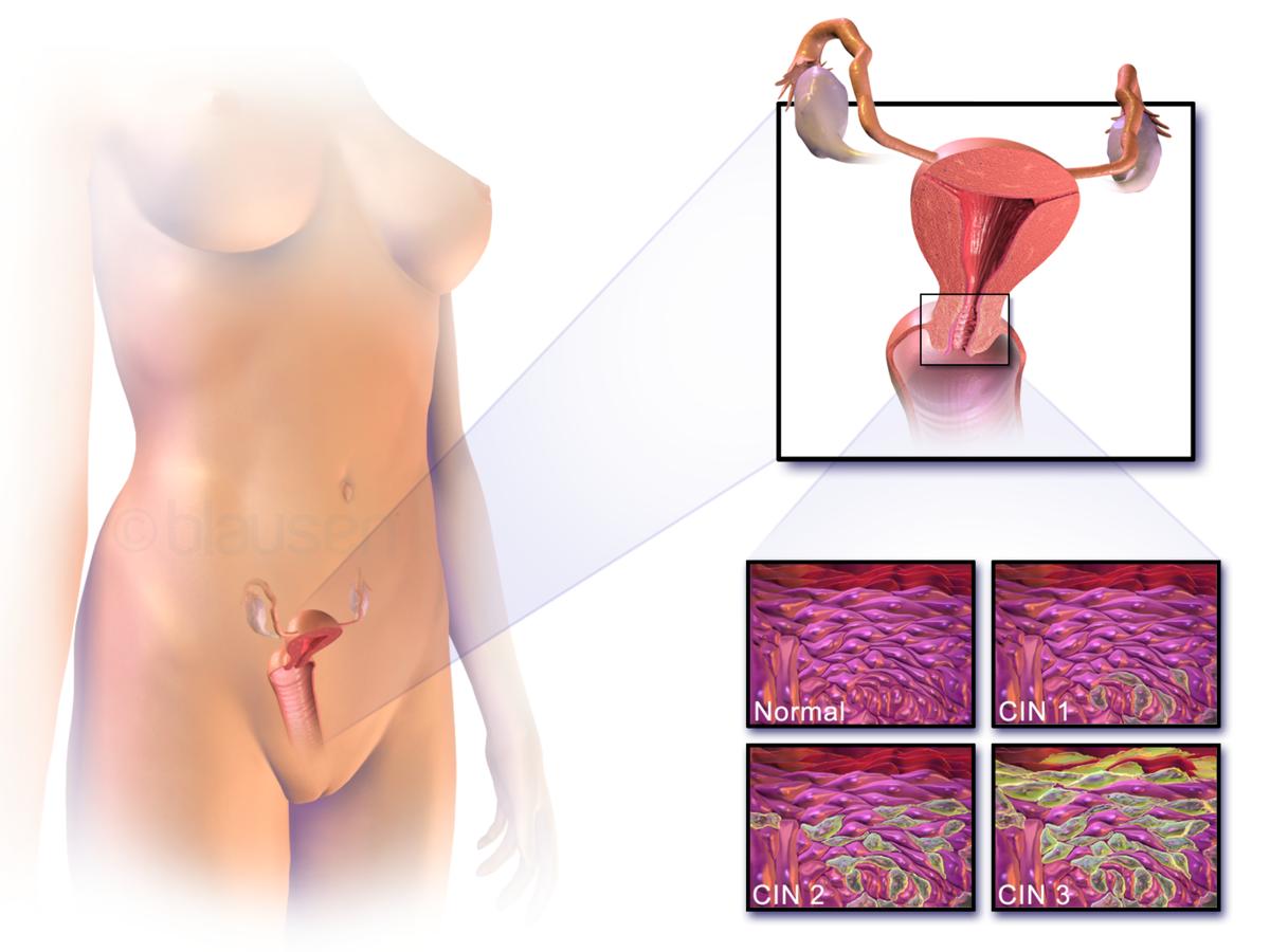 Importanta Testului HPV in depistarea cancerului de col uterin
