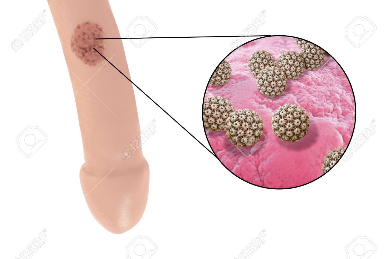human papilloma virus cose