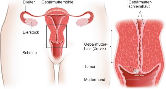hpv gebarmutter behandlung cancer laringe imagenes