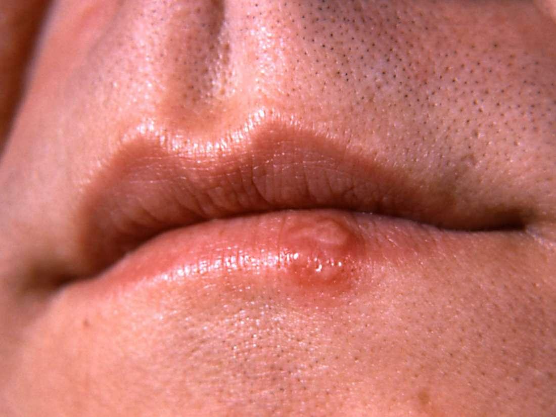 hpv lip rash cancerul de corp uterin simptome