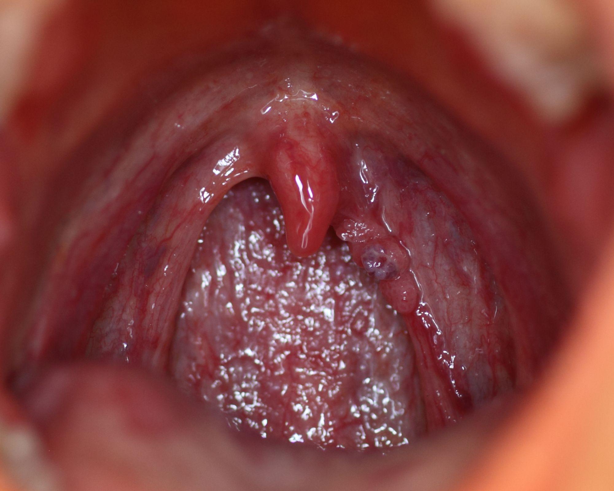 hpv tongue wart