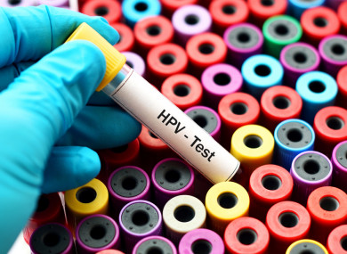 papillomavirus douleurs cancer de plamani manifestari