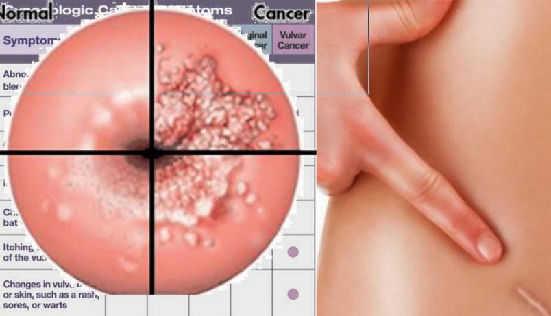 HPV-fertőzés tünetei és kezelése - Hpv vírus krebsabstrich