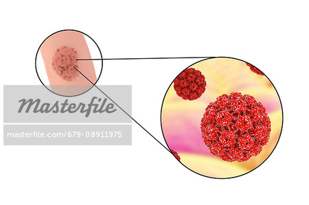 colorectal cancer lab tests remove papilloma home